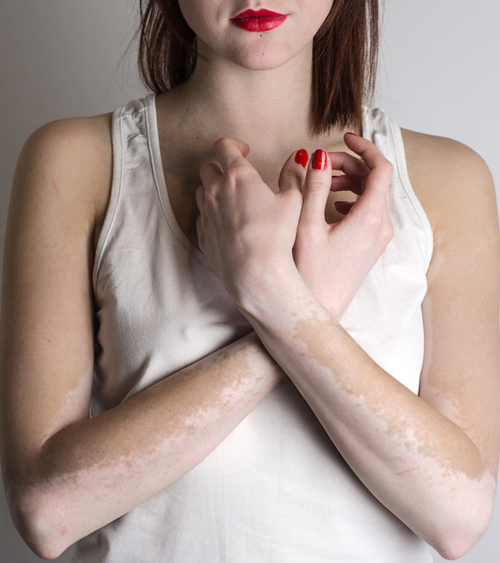 21 Natural Ways To Get Rid Of White Spots On Skin Vitiligo Beautybeseech